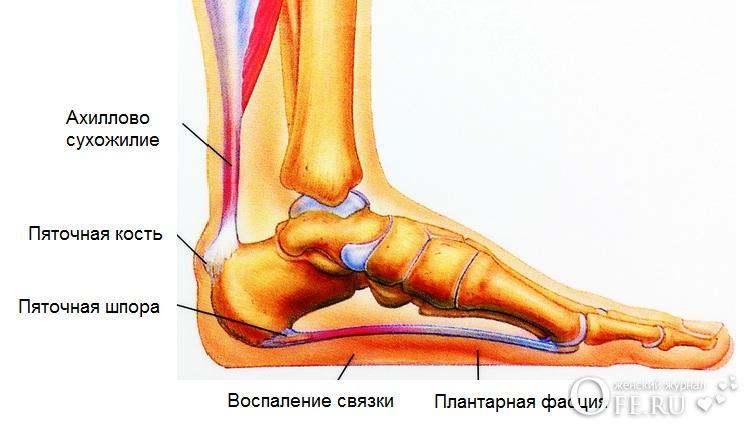 шпоры на ногах симптомы фото