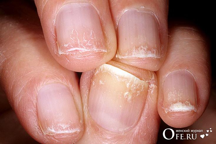 Слоятся ногти, лечение ногтей, укрепление ногтей