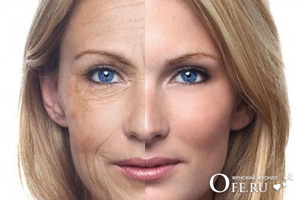 4 типа старения кожи лица