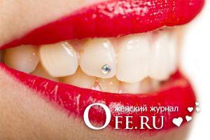 Стразы на зубах: как установить и ухаживать
