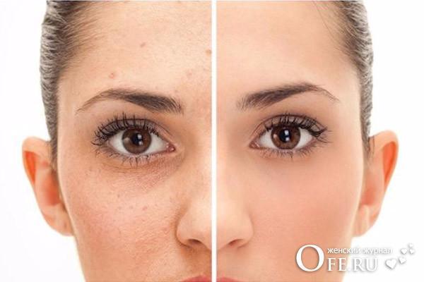 Расширенные поры на лице, как избавиться?
