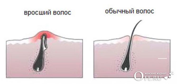 Как избавиться от вросших волос на ногах